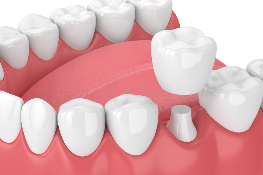 A dental crown capping a natural tooth that was damaged in Canton, GA